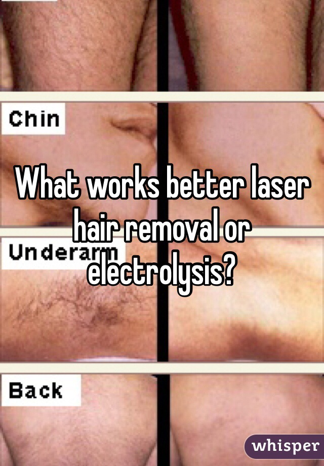 What Works Better Laser Hair Removal Or Electrolysis
