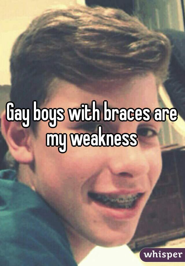from Steve gay boy with braces