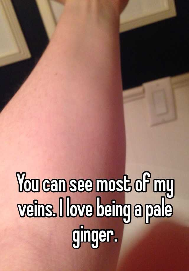 why can you see my veins