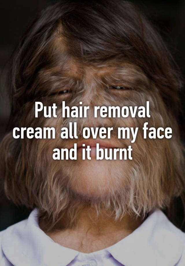 Put Hair Removal Cream All Over My Face And It Burnt