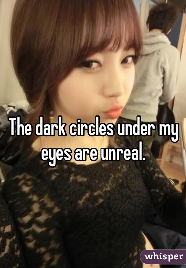 The dark circles under my eyes are unreal.