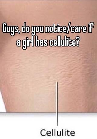 Cellulite do guys notice it