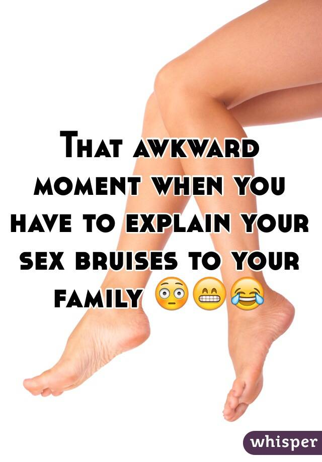 Bruises from sex