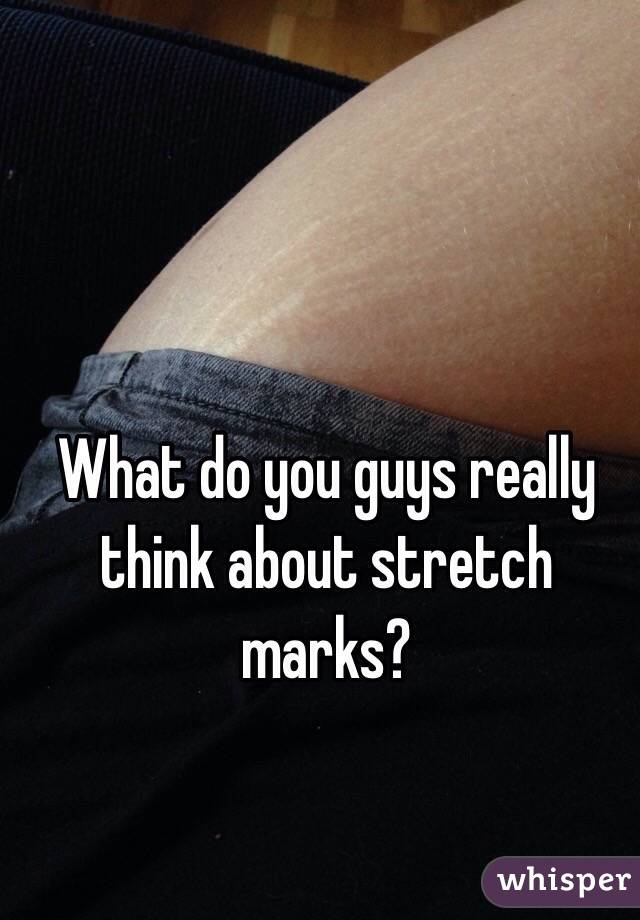 What do you guys really think about stretch marks?