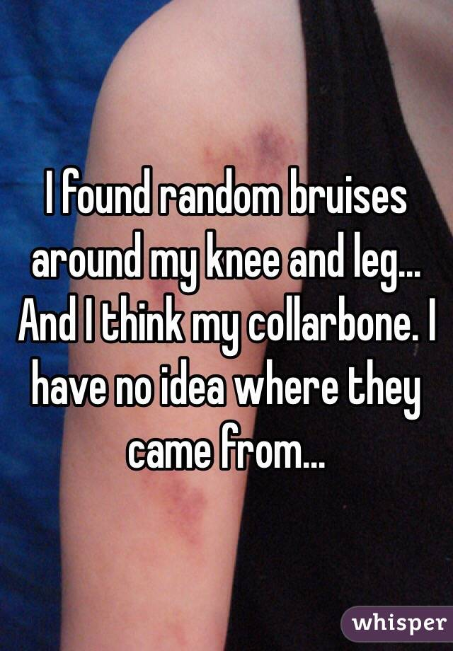 I found random bruises around my knee and leg... And I think my collarbone. I have no idea where they came from...
