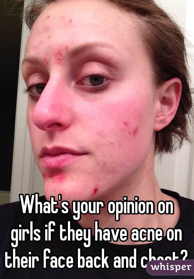 What's your opinion on girls if they have acne on their face back and chest?