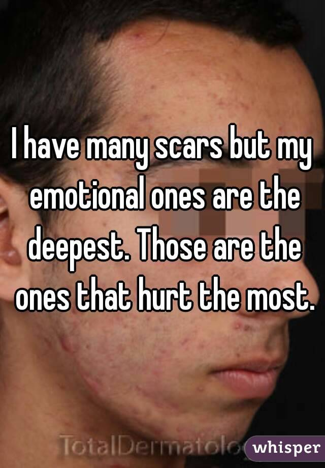 I have many scars but my emotional ones are the deepest. Those are the ones that hurt the most.
