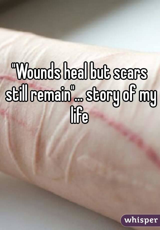 """""""Wounds heal but scars still remain""""… story of my life"""