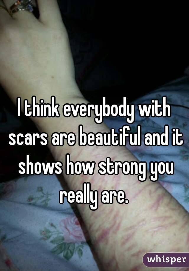 I think everybody with scars are beautiful and it shows how strong you really are.