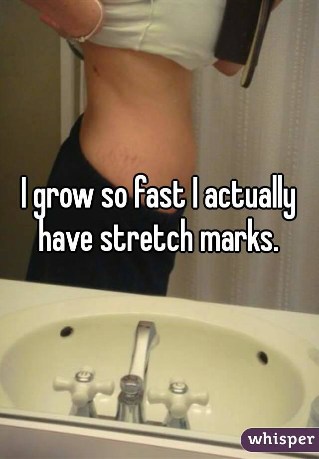 I grow so fast I actually have stretch marks.