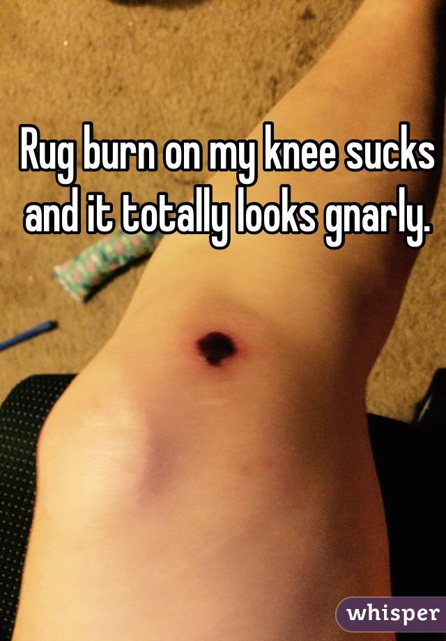 Rug burn on my knee sucks and it totally looks gnarly.