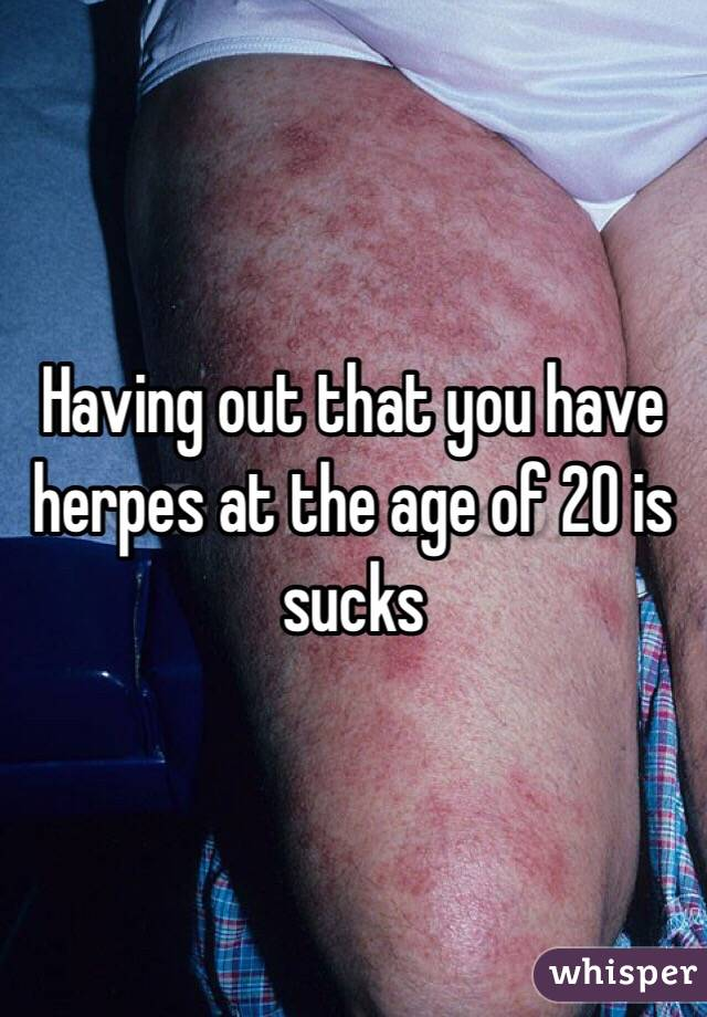 Having out that you have herpes at the age of 20 is sucks