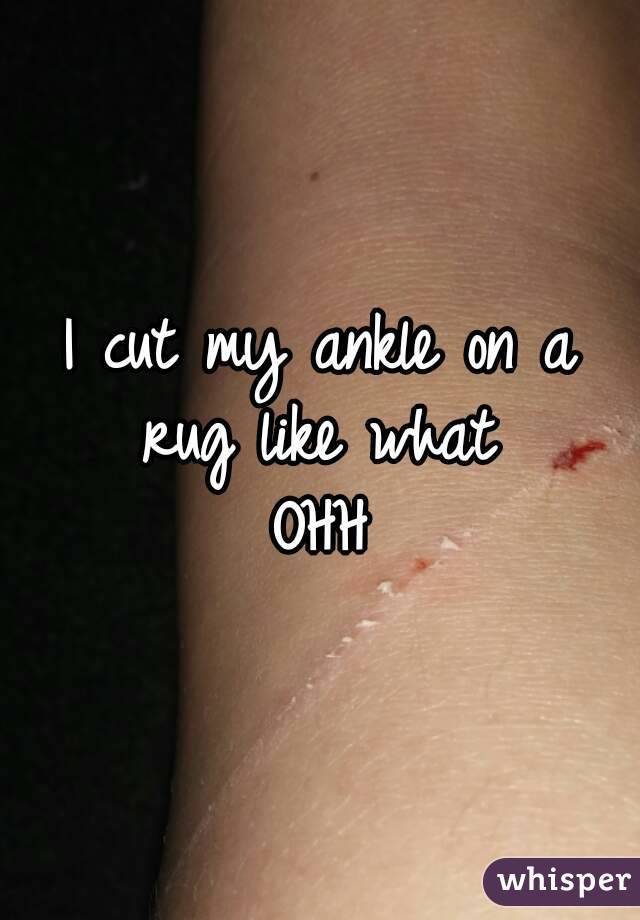 I cut my ankle on a rug like what  OHH