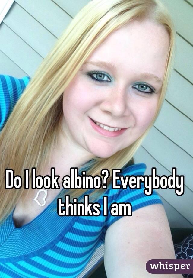Do I look albino? Everybody thinks I am