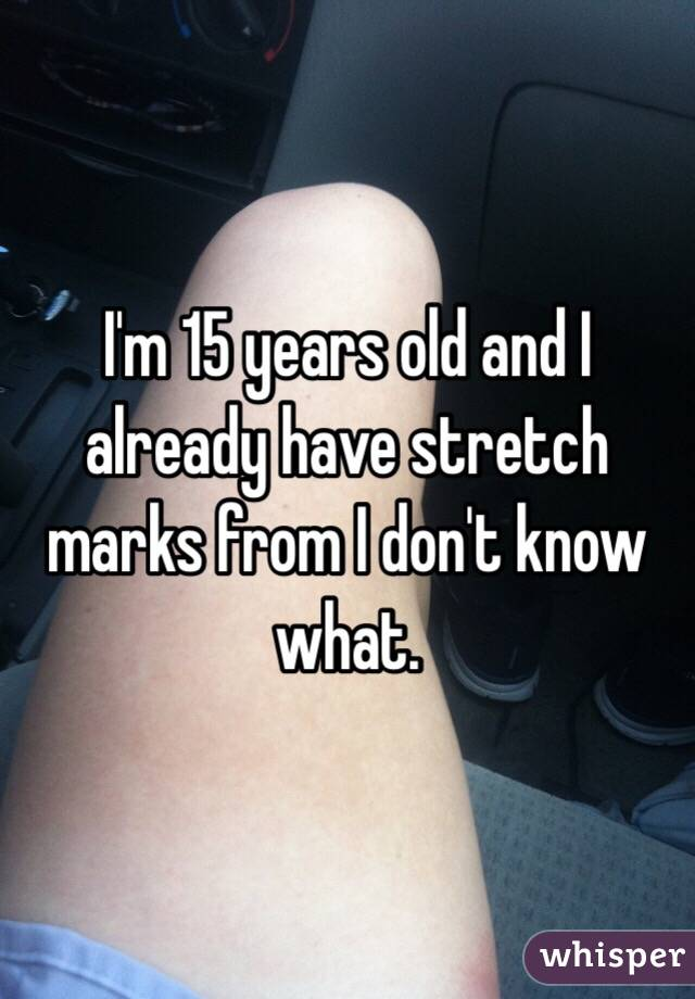 I'm 15 years old and I already have stretch marks from I don't know what.