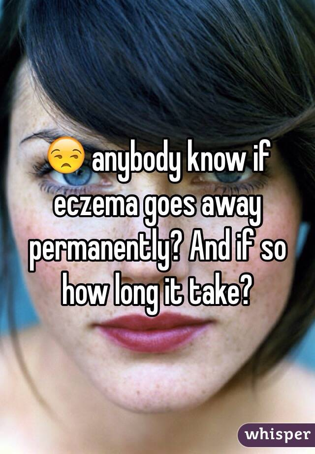 😒 anybody know if eczema goes away permanently? And if so how long it take?