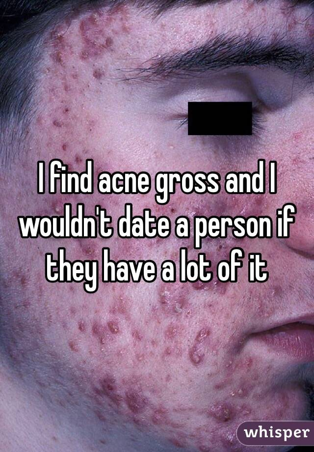 I find acne gross and I wouldn't date a person if they have a lot of it