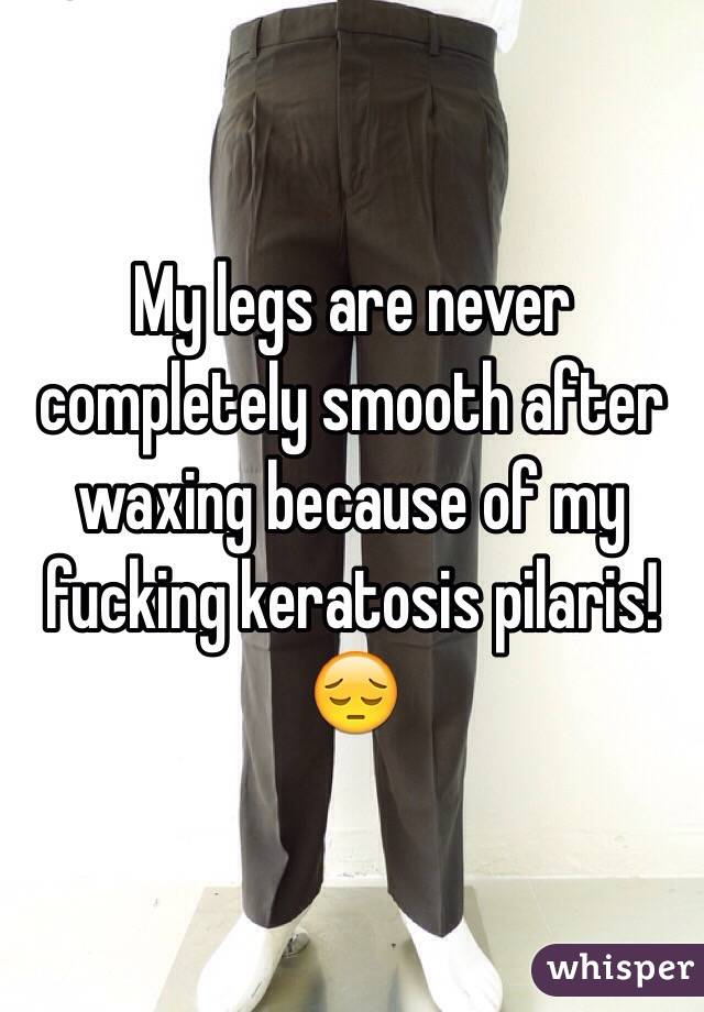My legs are never completely smooth after waxing because of my fucking keratosis pilaris! 😔