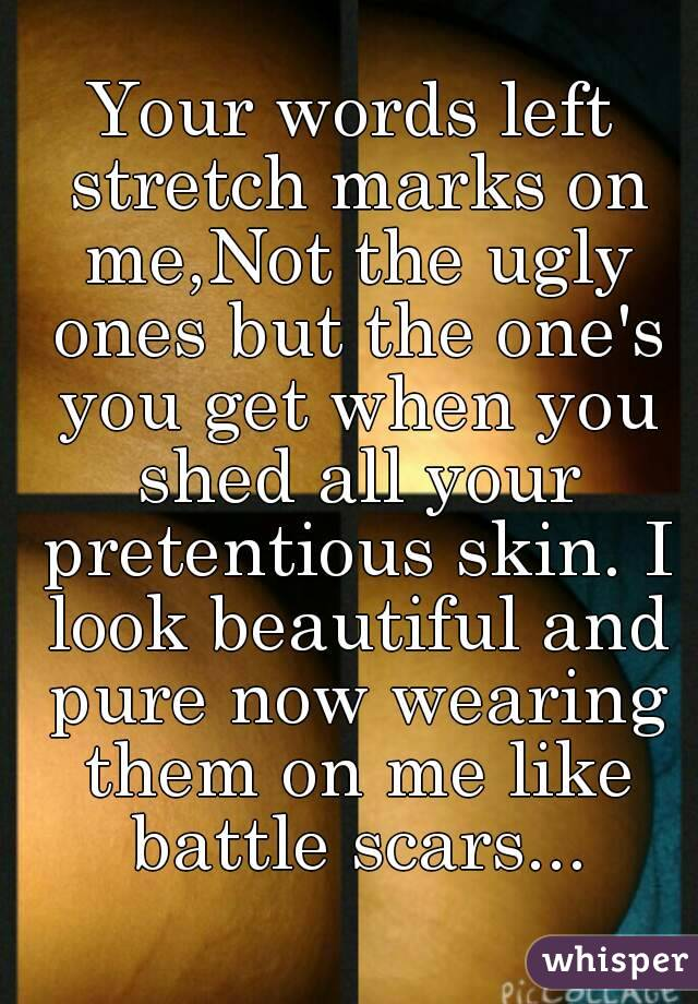 Your words left stretch marks on me,Not the ugly ones but the one's you get when you shed all your pretentious skin.I look beautiful and pure now wearing them on me like battle scars...