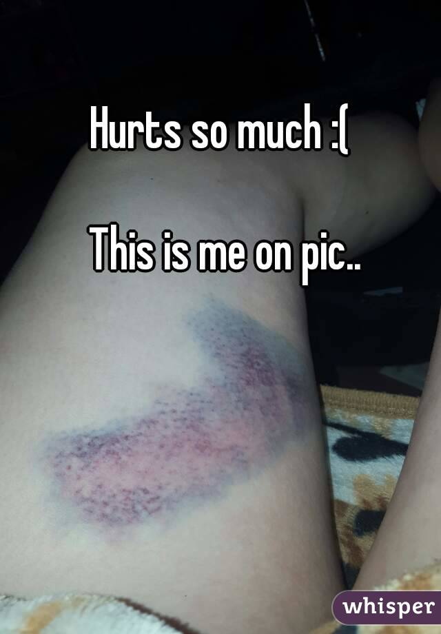 Hurts so much :(   This is me on pic..