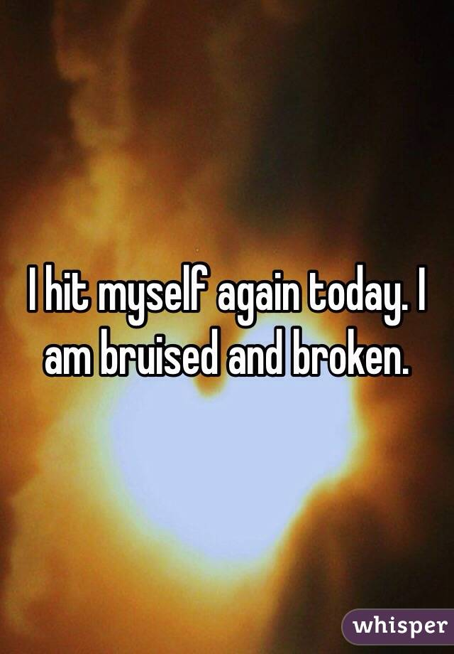 I hit myself again today. I am bruised and broken.