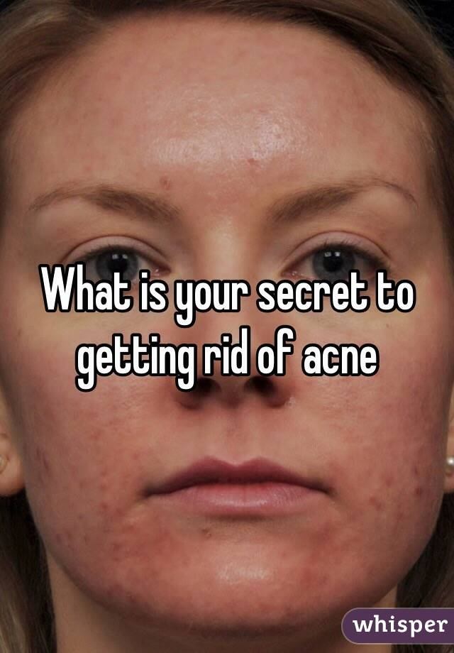 What is your secret to getting rid of acne