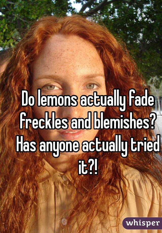 Do lemons actually fade freckles and blemishes? Has anyone actually tried it?!