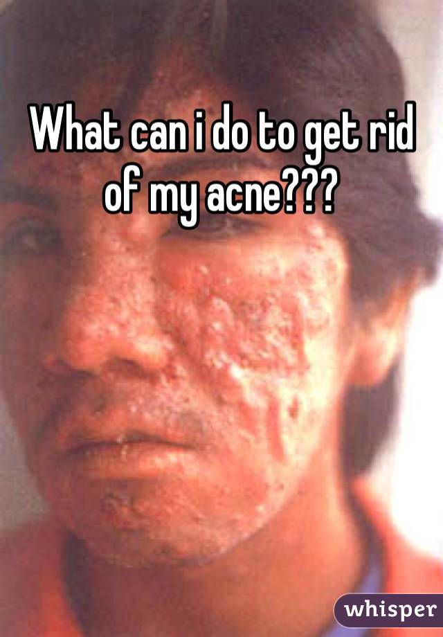 What can i do to get rid of my acne???