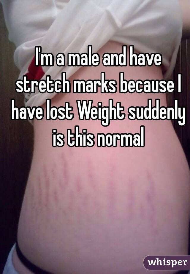 I'm a male and have stretch marks because I have lost Weight suddenly is this normal