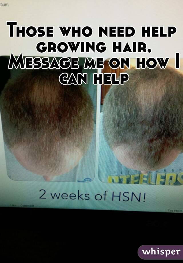 Those who need help growing hair. Message me on how I can help