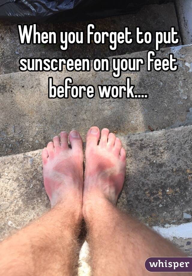 When you forget to put sunscreen on your feet before work....