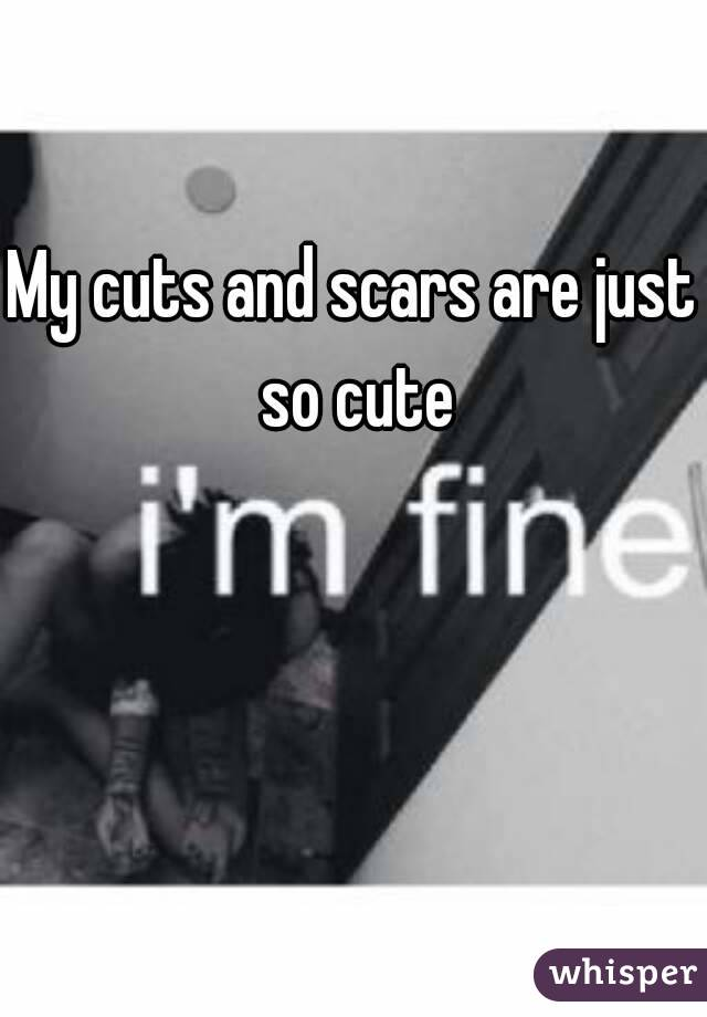 My cuts and scars are just so cute