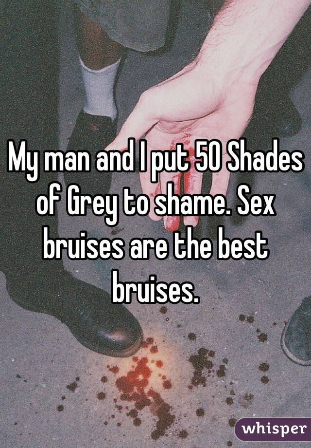 My man and I put 50 Shades of Grey to shame. Sex bruises are the best bruises.
