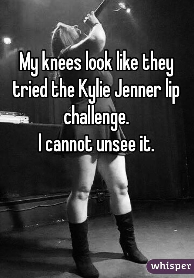 My knees look like they tried the Kylie Jenner lip challenge.  I cannot unsee it.