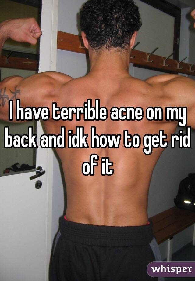 I have terrible acne on my back and idk how to get rid of it