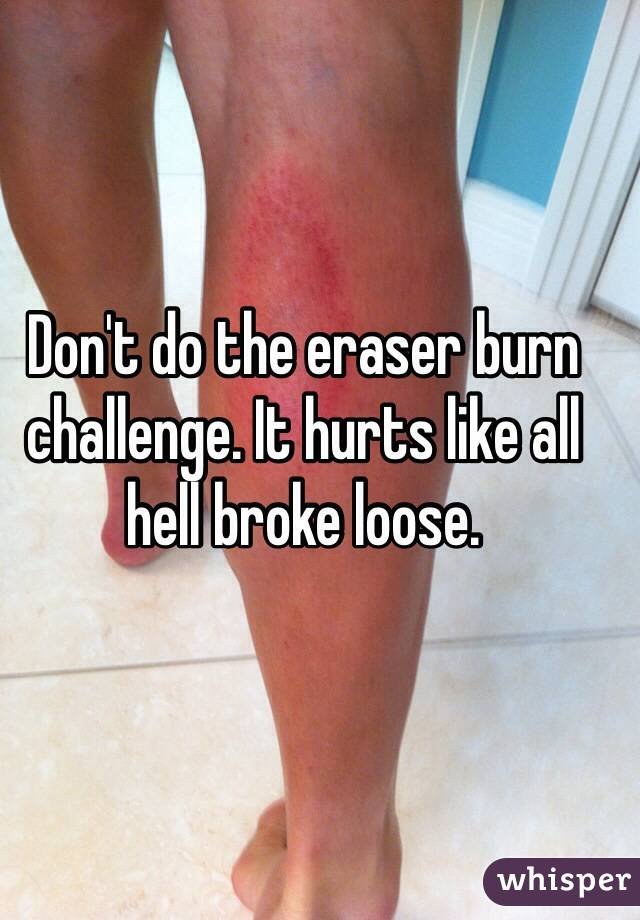 Don't do the eraser burn challenge. It hurts like all hell broke loose.