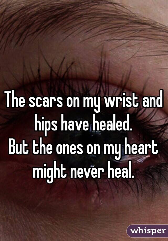 The scars on my wrist and hips have healed. But the ones on my heart might never heal.