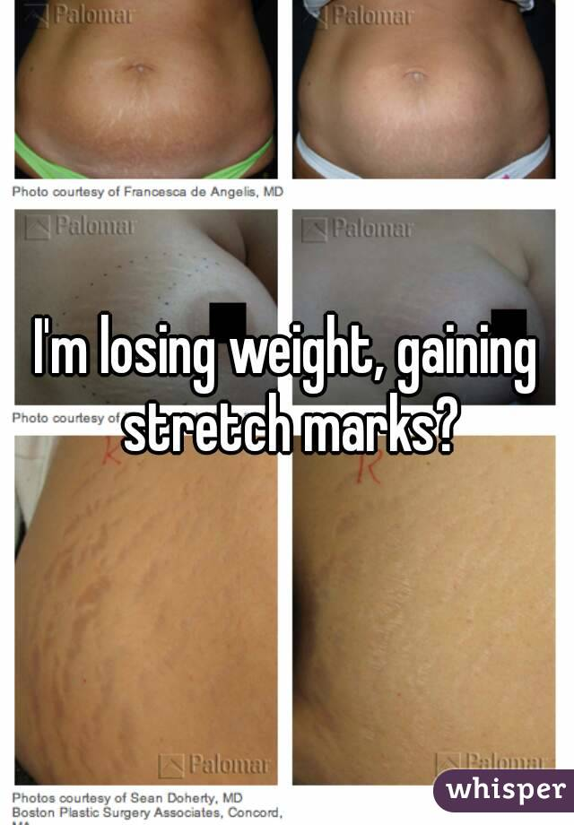 I M Losing Weight Gaining Stretch Marks