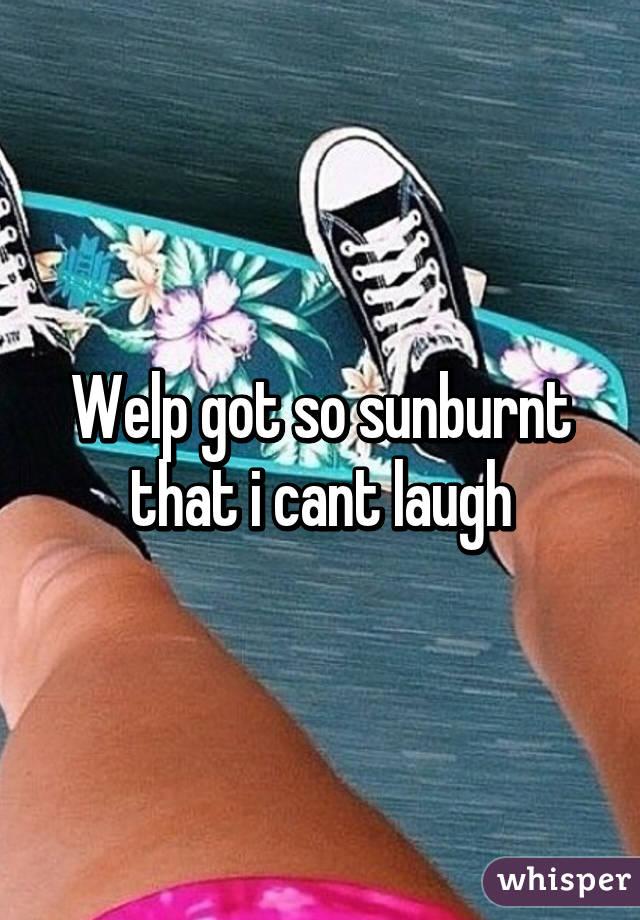 Welp got so sunburnt that i cant laugh