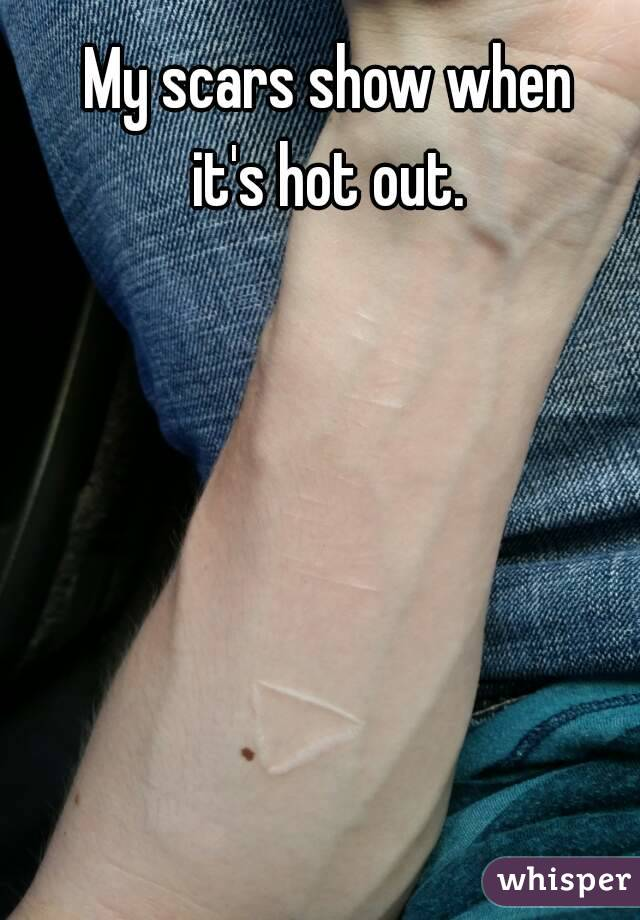 My scars show when it's hot out.