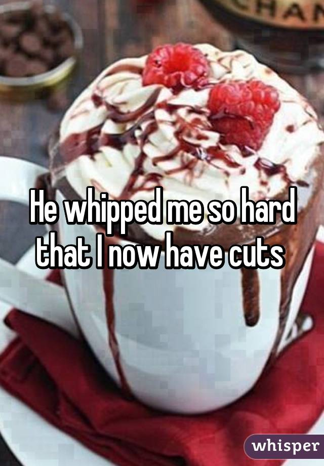 He whipped me so hard that I now have cuts