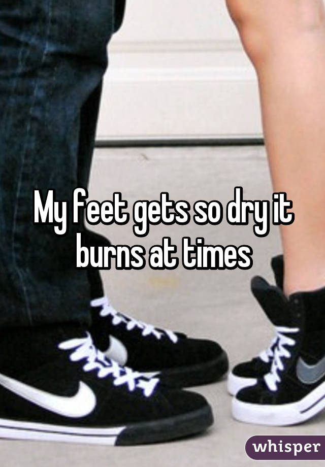 My feet gets so dry it burns at times