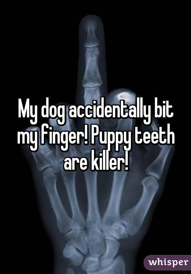 My dog accidentally bit my finger! Puppy teeth are killer!