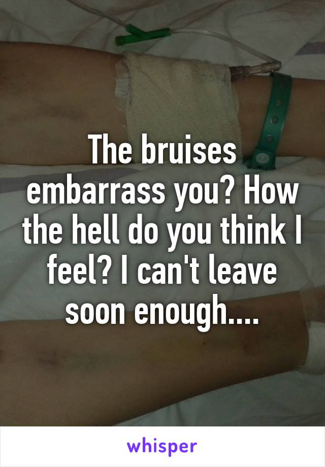 The bruises embarrass you? How the hell do you think I feel? I can't leave soon enough....