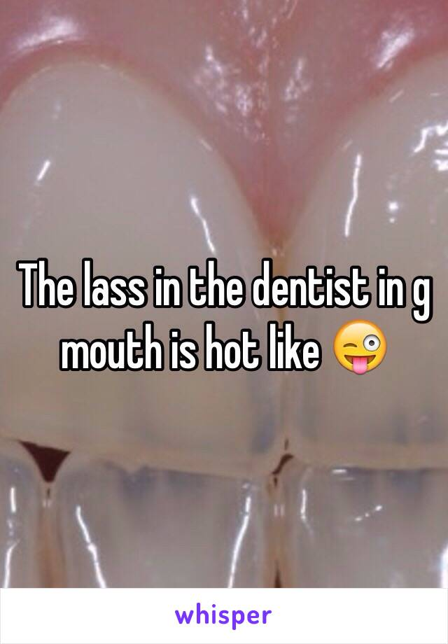 The lass in the dentist in g mouth is hot like 😜
