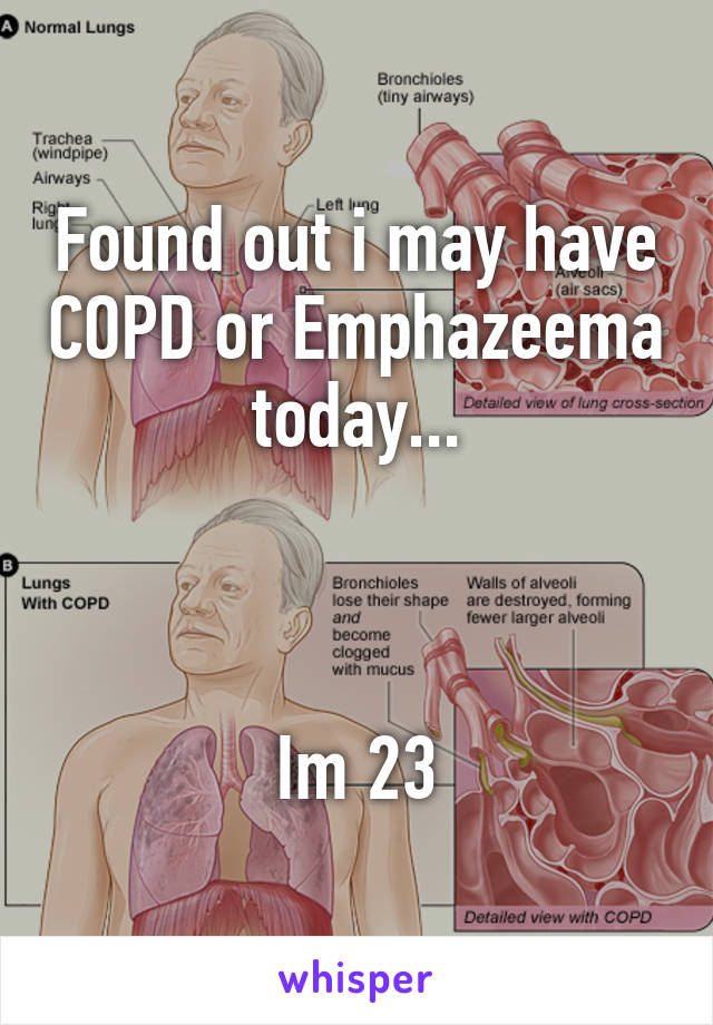 Found out i may have COPD or Emphazeema today...    Im 23