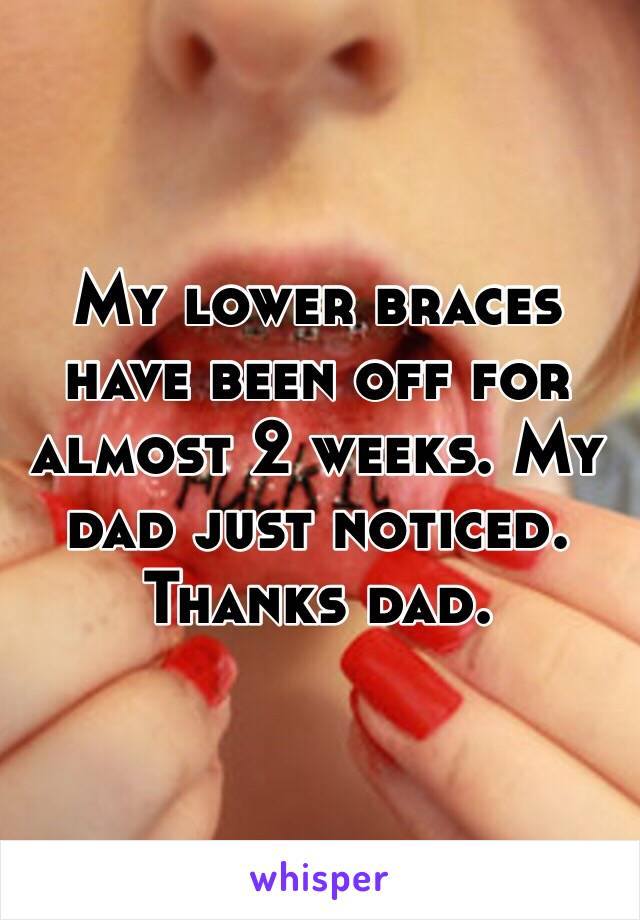 My lower braces have been off for almost 2 weeks. My dad just noticed. Thanks dad.