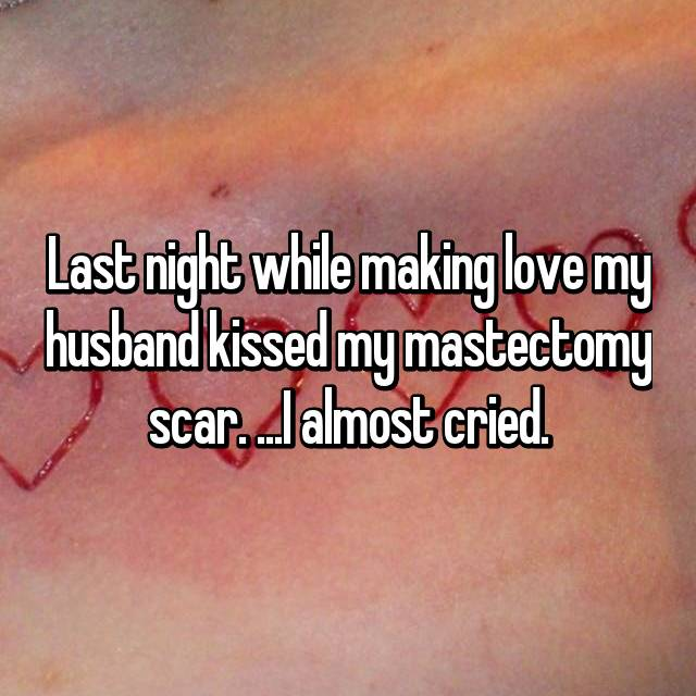 Last night while making love my husband kissed my mastectomy scar. ...I almost cried.