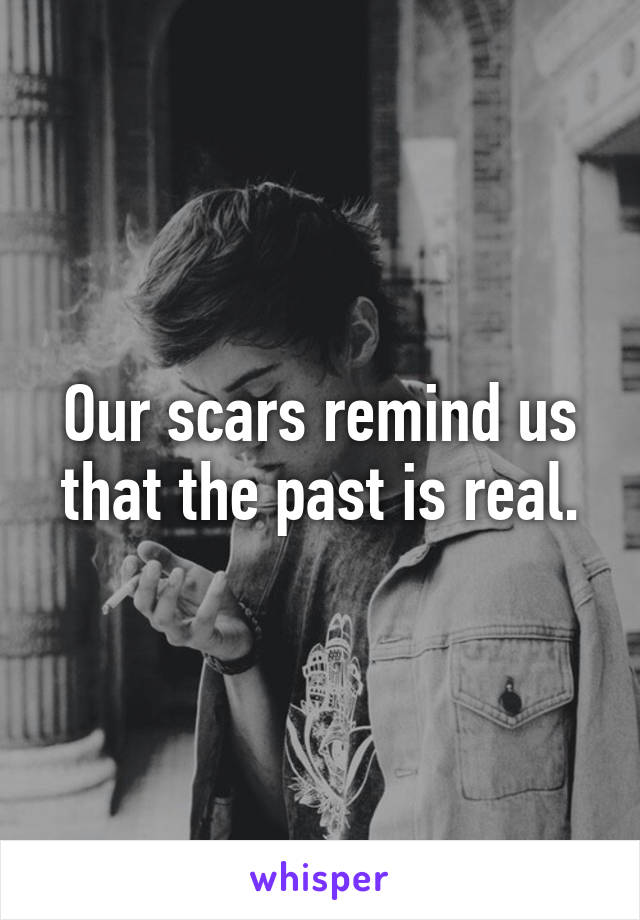 Our scars remind us that the past is real.
