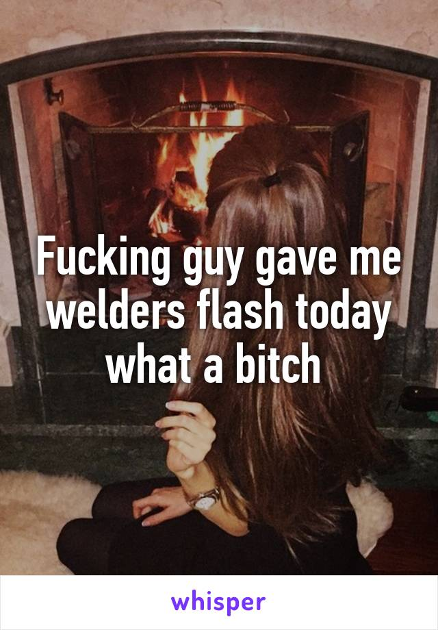 Fucking guy gave me welders flash today what a bitch